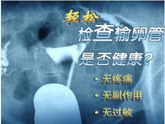 杭州医院做输卵管造影检查